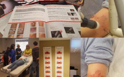 FOTONA QX MAX (Tattoo removal Laser ) PRESENTATION (rus)